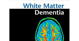 materia blanca mente y cerebro