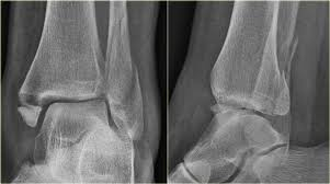 The Radiology Assistant Ankle Fracture Weber And Lauge