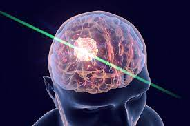 Lasers help fight deadly brain tumors – Washington University School of  Medicine in St. Louis