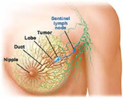 Pijnlijke borsten in de overgang - overgangsklachten