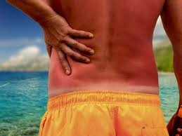 Sunburn Severity Chart Sunburn Treatments Home Remedies And Prevention