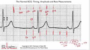 Ecg Rate Determination Chart Easy Explanation Of Calculating Rate On Ecg Ekg