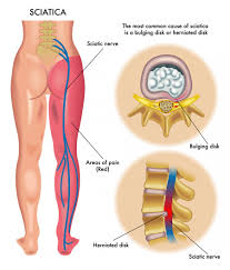 Back Nerve Chart Cure Your Sciatica Pain Your Questions Answered Ok Pain
