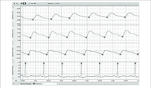 Lab Chart Example Reading Of Labchart File We Simultaneously Recorded