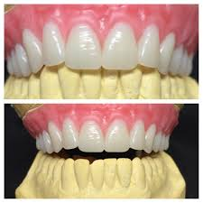 Pin By Rin A Dingding On Teeth Study Dentistry Tooth