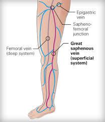 Saphenous Vein Great Causes Symptoms Treatment Saphenous