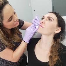 lip filler aftercare lumps after
