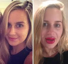 plastic surgery lip enhancement