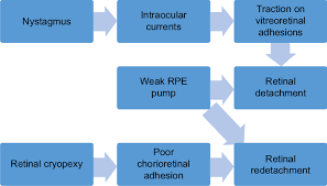 Flow Chart Of The Pathophysiology Of Retinal Detachment In