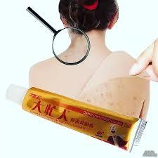 Дамангрен ( YIGANERJING ) крем за псориазис | дерматит | екзема | сърбеж |  гъбички | Здрав..