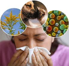 Herbal Remedies for Allergies: Natural Antihistamines | RemedyGrove