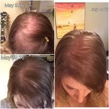 sp hair growth page 1 line 17qq com
