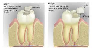 Dental Inlay Inlays And Onlays Eley Family Dentistry