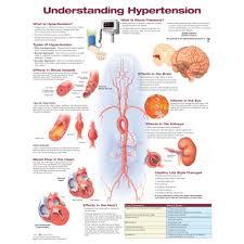 Bp Chart Uk Understanding Hypertension Chart Poster Laminated