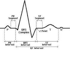 How To Read Ecg Basic Common Charts Phartoonz