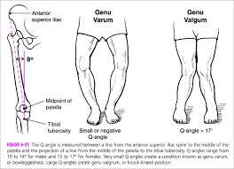 Resultado de imagem para FOTO DO desequilíbrio muscular