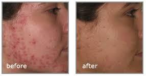 acne behandeling den haag