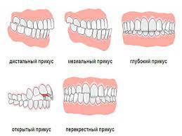 Правильный и неправильный прикус зубов как определить Доктор Зуб Аномальное смыкание зубов