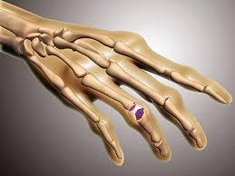 with rheumatoid arthritis