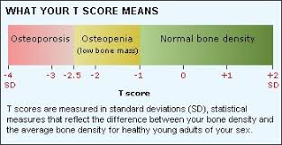 Bone Mineral Density Tests Mydr Com Au