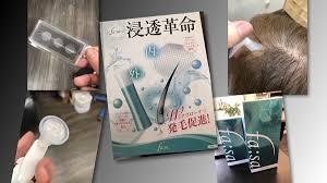 頭に針【マイクロニードル】を刺して注入!新たなタイプの育毛剤ファーサとは | 名古屋塩釜口外国人風カラーが得意な寺島洋輔ヘアカラーBLOG