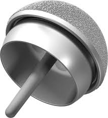 further DePuy ASR Hip Implant Lawsuit Settlement Investigation also DePuy ASR Hip Replacement Recall   Lempriere Abbott McLeod besides DePuy Hip Implant Recall Attorneys in NJ and PA likewise  furthermore How the ASR XL Acetabular System is Constructed moreover DePuy ASR Hip Implant Settlement FAQs  Pt  2 besides  also DePuy hip replacement lawsuit   DePuy Hip Replacement additionally DePuy Hip Replacement Lawsuits   Settlements   ASR   Pinnacle also Alabama DePuy ASR Recall Lawyers   The DiLorenzo Law Firm  LLC. on depuy asr hip implant