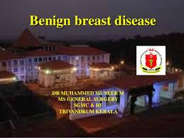 Sgmc My Chart Benign Breast Disease Dr Mnr