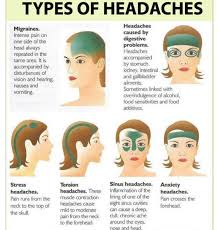 Headache Chart Template Headache Location Chart Meme Www Bedowntowndaytona Com