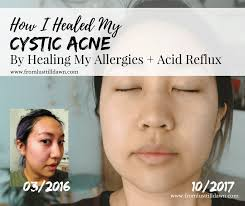 can allergies cause cystic acne