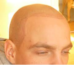 Tetování Vlasů Headstyle