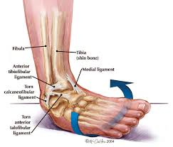 ankle sprains the insute for