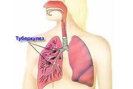 Заболевание туберкулез первые признаки симптомы методы  Первые признаки симптомы методы диагностики и как передается туберкулез