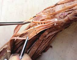 The extensor tendons are held in place by the extensor retinaculum. The Distal Part Of Right Forearm And Hand Showing Five Tendons Of Download Scientific Diagram