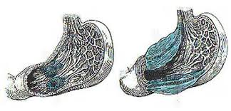 Реферат Рак желудка ru Рак желудка остается одним из самых распространенных заболеваний в мире Ежегодно регистрируется почти 800 тысяч новых случаев и 628 тысяч смертей от этого