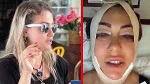 Yeliz Yeşilmen estetik operasyon için ameliyat masasına yattı