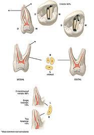 Maxillary Second Molar 10 Endodontics Its Objectives And Goals Endodontic Instruments