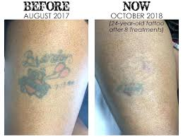 ink removal photo of invisible tattoo removers united states clean from leather purse removing polyester shirt