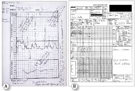 Anaesthetic Monitoring Chart Aims Should We Aim Higher Anesthesia Patient Safety