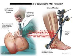 external fixator amicus illustration of amicus surgery external fixation foot leg