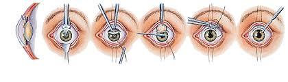 cataracte dans Santé