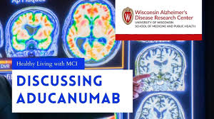 Discussing Aducanumab with Alzheimer's Disease Experts | Healthy Living  with MCI Special Segment - YouTube