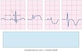 Ecg Chart Examples Royalty Free Abnormal Ekg Stock Images Photos Vectors