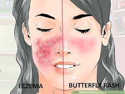 How to Tell Eczema from Butterfly Rash: 6 Steps (with Pictures)