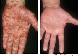 Psoriasis Treatment Stop Itching Crutchfield Dermatology