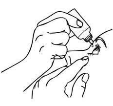 tratamento com gotas: abordagem inicial para diminuir mais precocemente a tensão ocular
