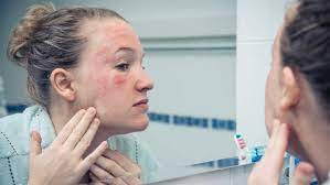 The british journal of dermatology. How To Treat Rosacea According To A Dermatologist