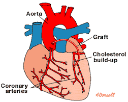 coronary heart disease causes symptoms prevention southern  coronary heart disease 1