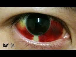 27 days healing time lapse broken blood vessel in eye subconjunctival hemorrhage