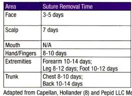 Suture Removal Chart How Long Will Absorbable Suture Hold Medical Assistant