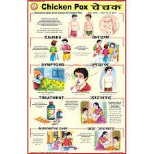 Chicken Pox Chart Chicken Pox Chart 50x75cm